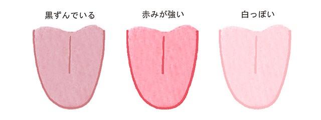 「舌」の画像検索結果